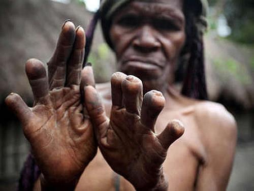Grotte Sacre Nuova Guinea Dugum Dani Mutilazione Rituale Dita